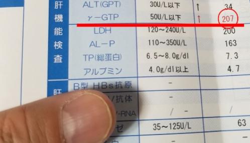 尿酸値と肝臓の関係 肝臓数値(ガンマGTP)が高い…肝機能障害を改善_γ-gtp200以上